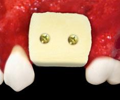 Dual-Block OsteoBiol
