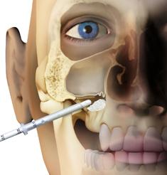 Mp3 OsteoBiol