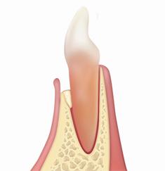 Gel40 OsteoBiol